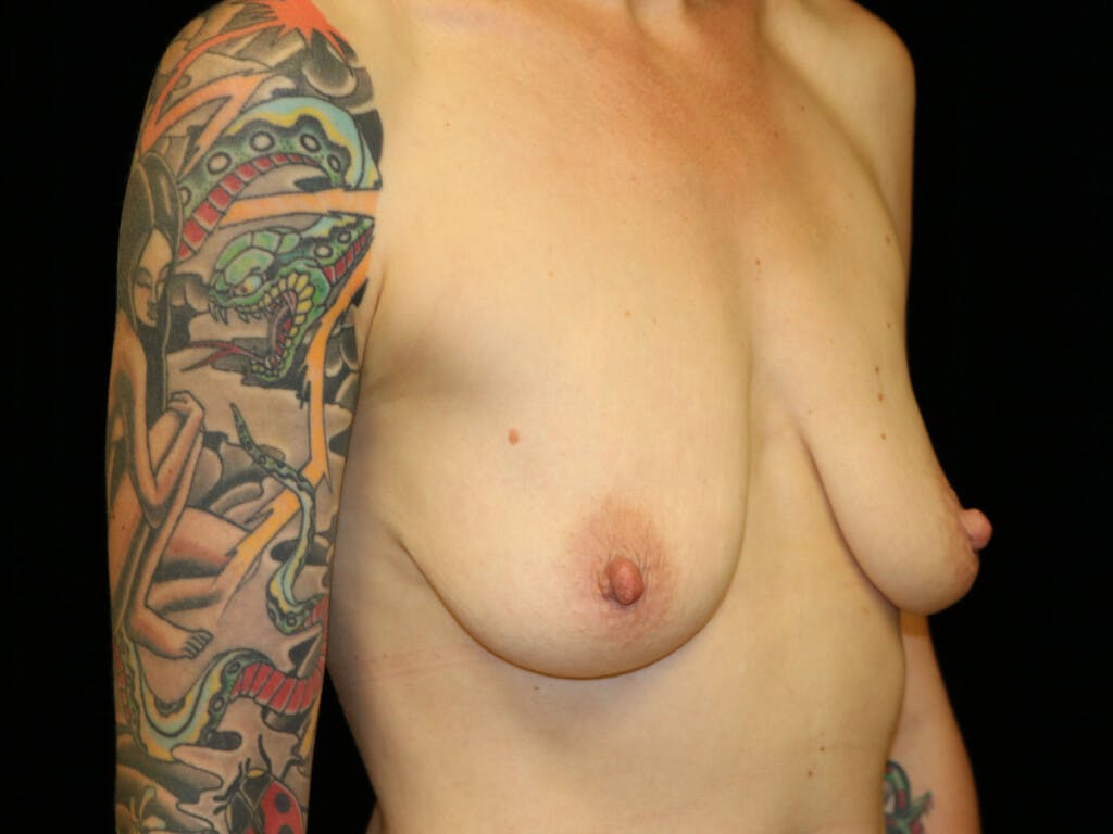 Vertical and Inverted T Breast Lift Gallery - Patient 39244126 - Image 7