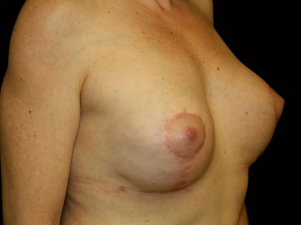 Revision Breast Surgery Gallery - Patient 39244130 - Image 2