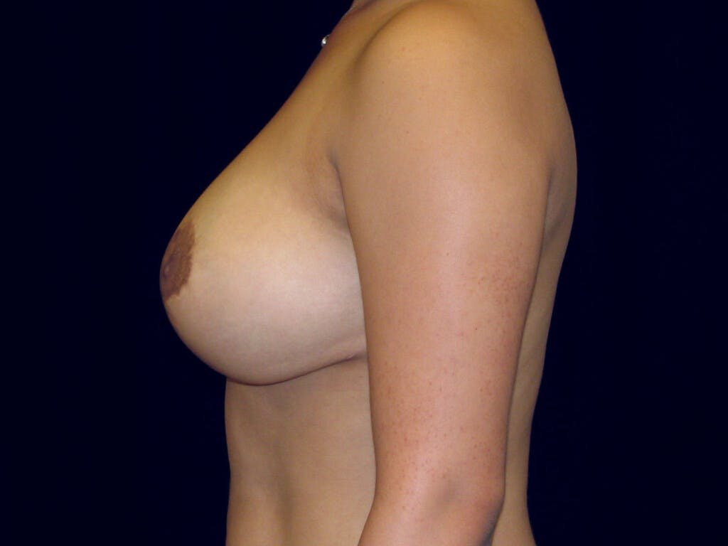 Breast Reduction T Incision Gallery - Patient 39244128 - Image 6