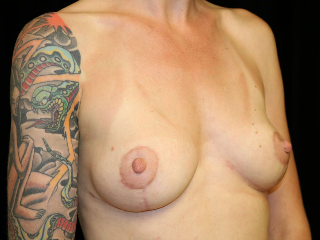 Vertical and Inverted T Breast Lift Gallery - Patient 39244126 - Image 8