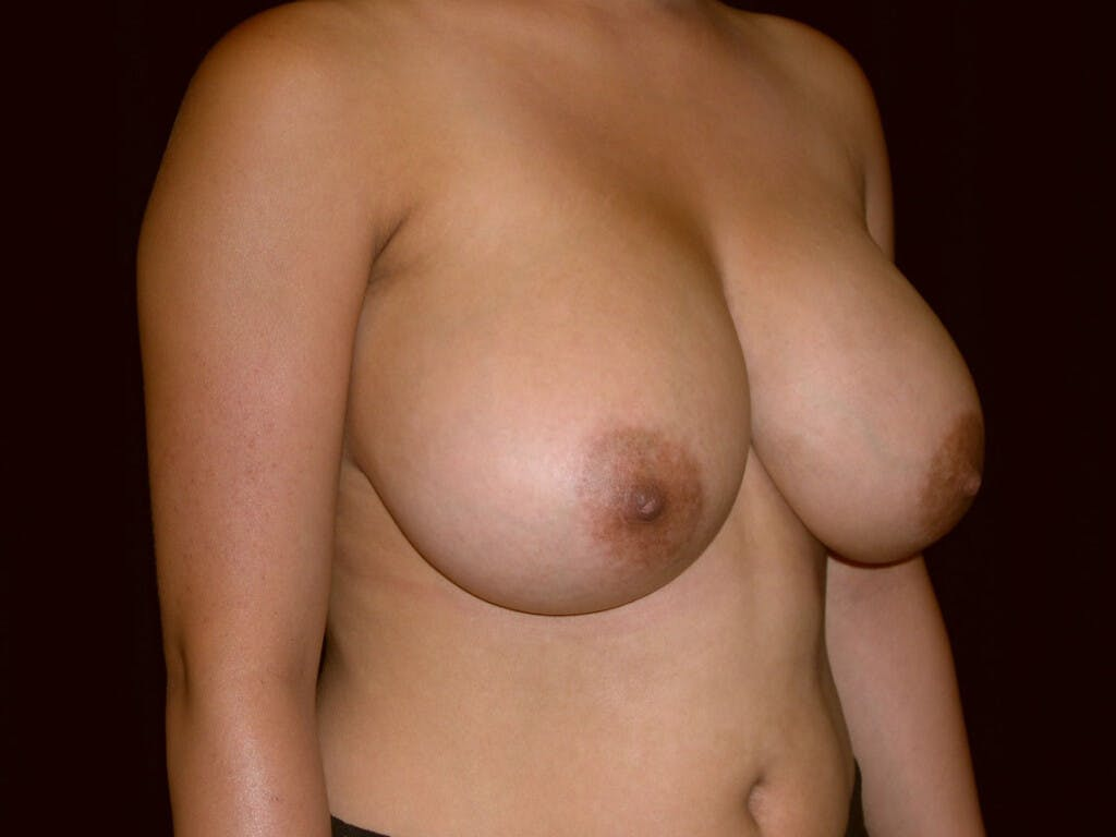 Breast Reduction T Incision Gallery - Patient 39244128 - Image 7