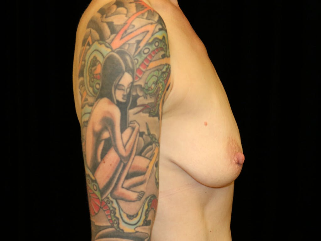 Vertical and Inverted T Breast Lift Gallery - Patient 39244126 - Image 9