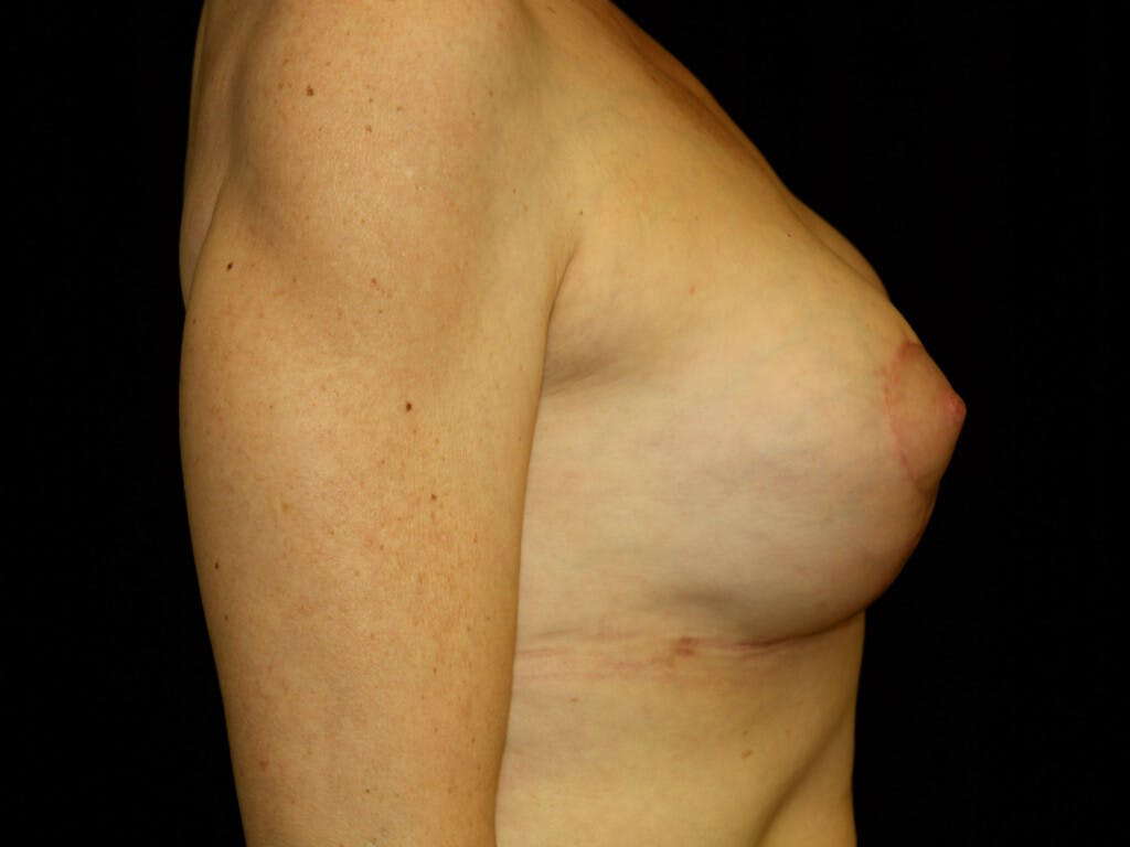 Revision Breast Surgery Gallery - Patient 39244130 - Image 4