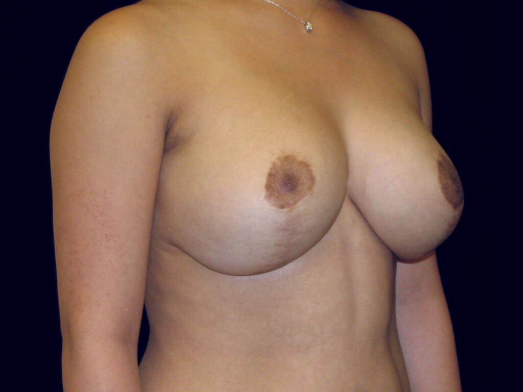 Breast Reduction T Incision Gallery - Patient 39244128 - Image 8