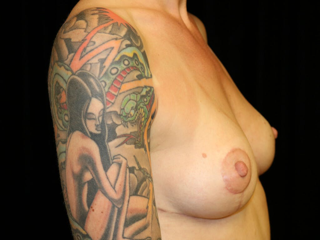 Vertical and Inverted T Breast Lift Gallery - Patient 39244126 - Image 10