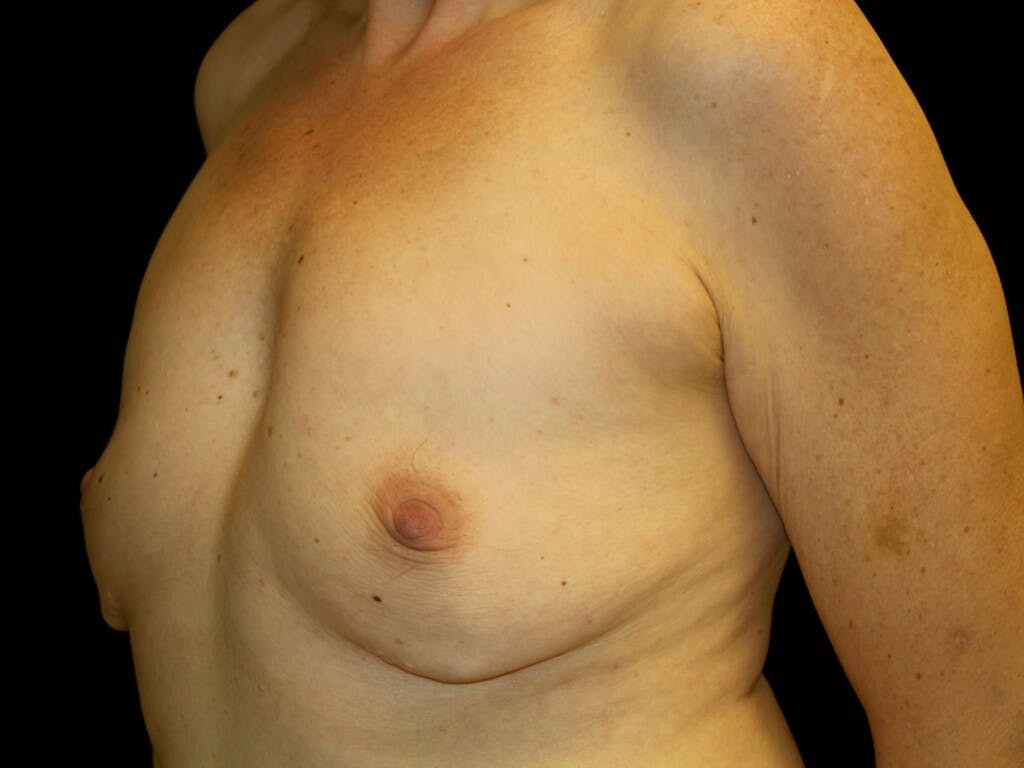 Revision Breast Surgery Gallery - Patient 39244130 - Image 5