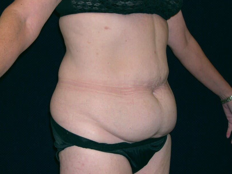 Tummy Tuck Gallery - Patient 39244134 - Image 1