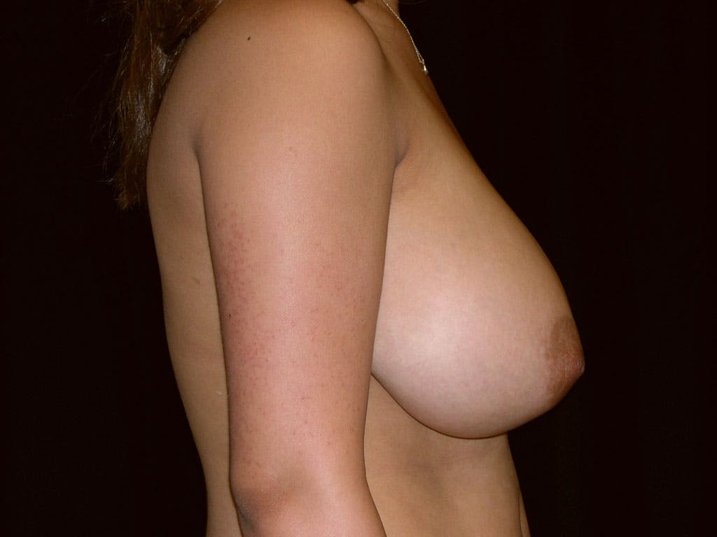Breast Reduction T Incision Gallery - Patient 39244128 - Image 9