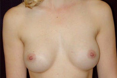Breast Augmentation Gallery - Patient 39244127 - Image 2