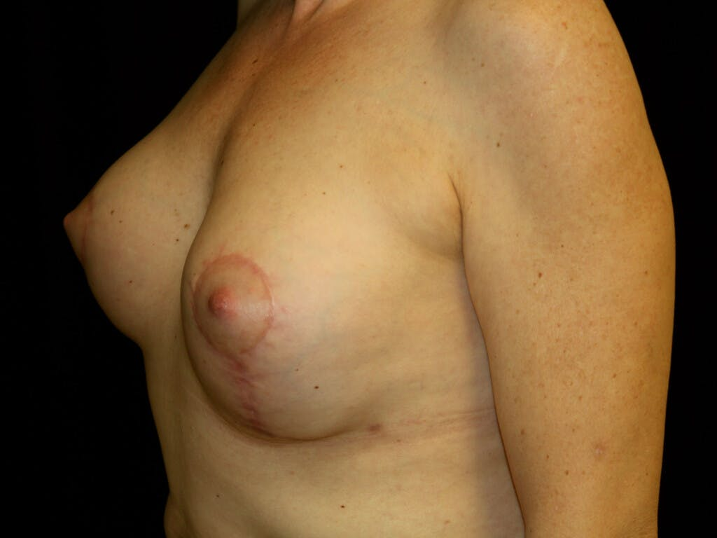 Revision Breast Surgery Gallery - Patient 39244130 - Image 6