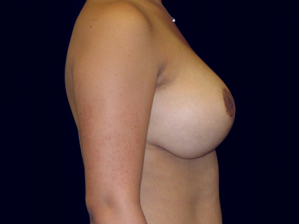 Breast Reduction T Incision Gallery - Patient 39244128 - Image 10