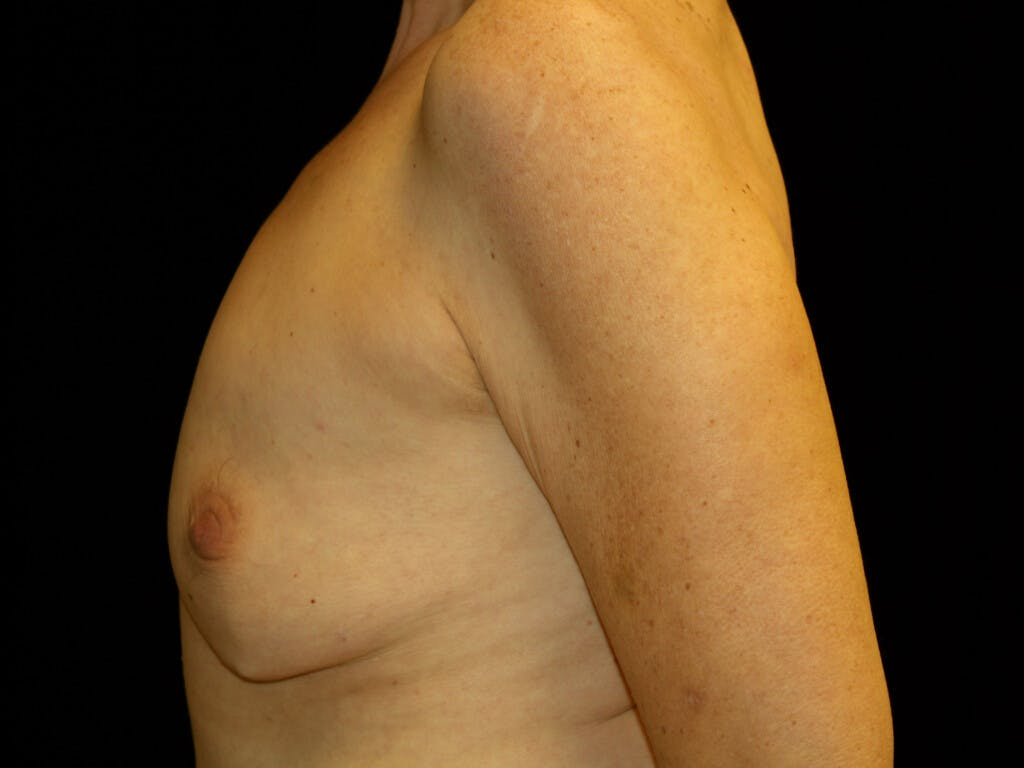 Revision Breast Surgery Gallery - Patient 39244130 - Image 7