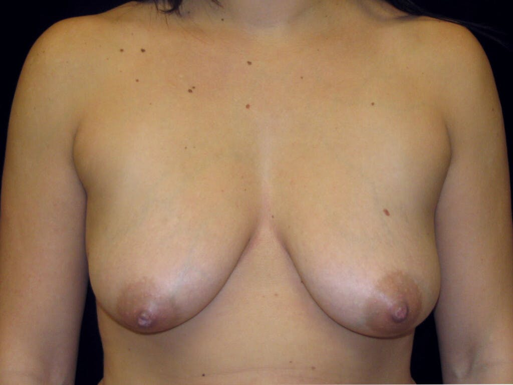 Vertical and Inverted T Breast Lift Gallery - Patient 39244137 - Image 1
