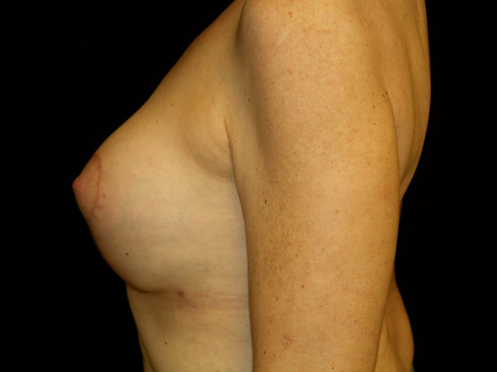 Revision Breast Surgery Gallery - Patient 39244130 - Image 8