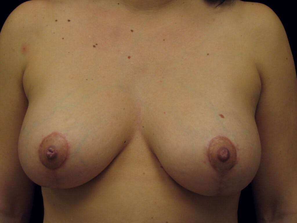 Vertical and Inverted T Breast Lift Gallery - Patient 39244137 - Image 2