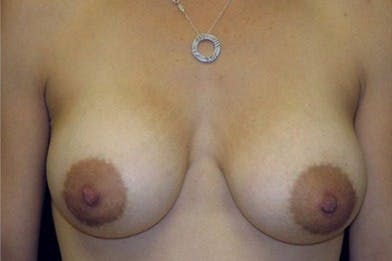 Breast Augmentation Gallery - Patient 39244131 - Image 2