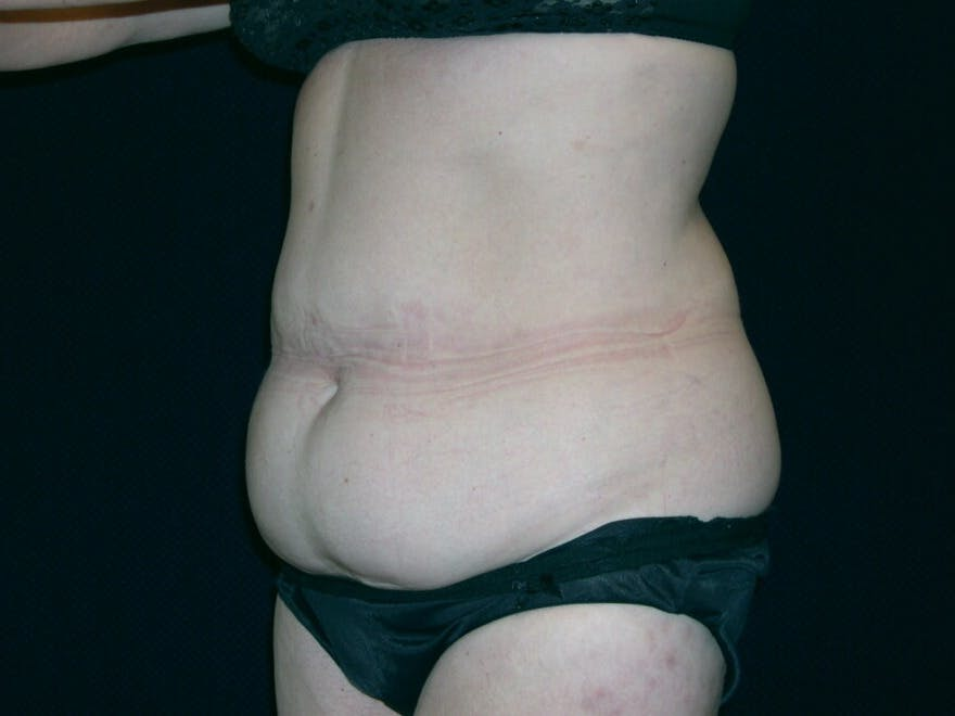 Tummy Tuck Gallery - Patient 39244134 - Image 5