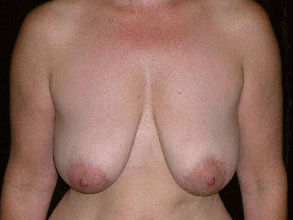Breast Reduction T Incision Gallery - Patient 39244140 - Image 1