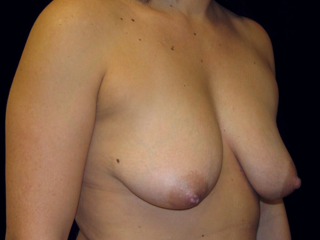 Vertical and Inverted T Breast Lift Gallery - Patient 39244137 - Image 3