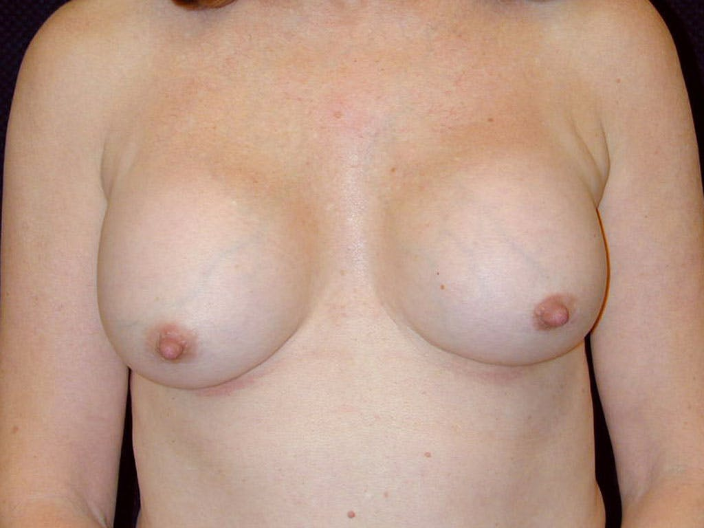 Revision Breast Surgery Gallery - Patient 39244141 - Image 1