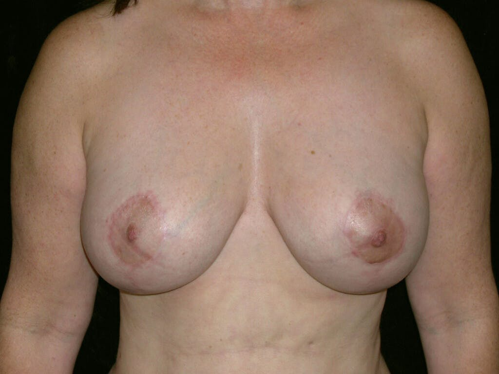 Breast Reduction T Incision Gallery - Patient 39244140 - Image 2