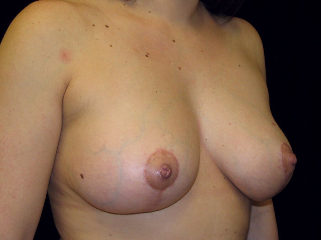 Vertical and Inverted T Breast Lift Gallery - Patient 39244137 - Image 4