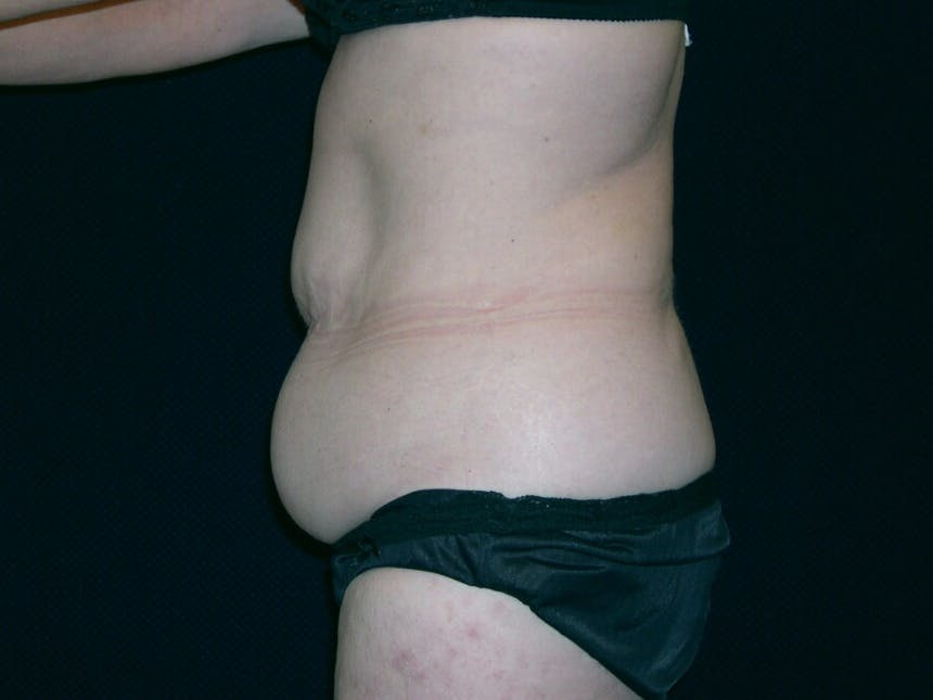 Tummy Tuck Gallery - Patient 39244134 - Image 7