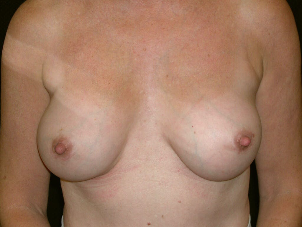 Revision Breast Surgery Gallery - Patient 39244141 - Image 2