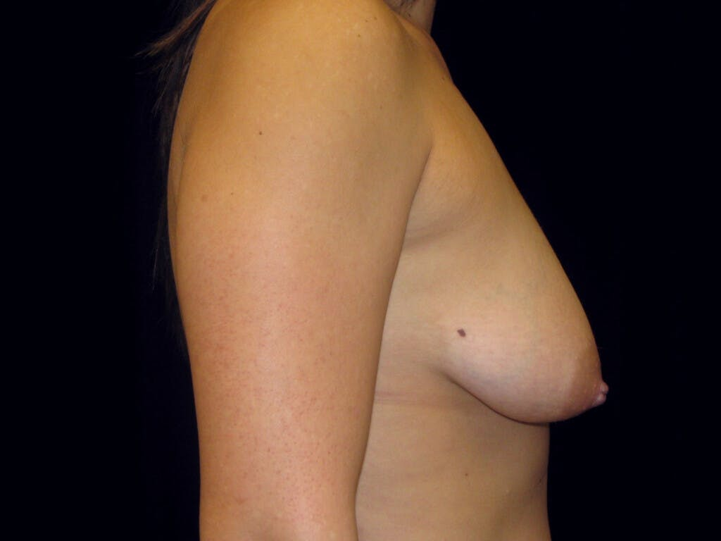 Vertical and Inverted T Breast Lift Gallery - Patient 39244137 - Image 5