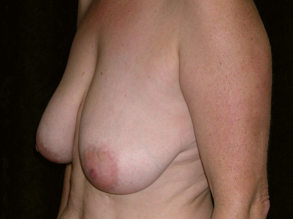 Breast Reduction T Incision Gallery - Patient 39244140 - Image 3