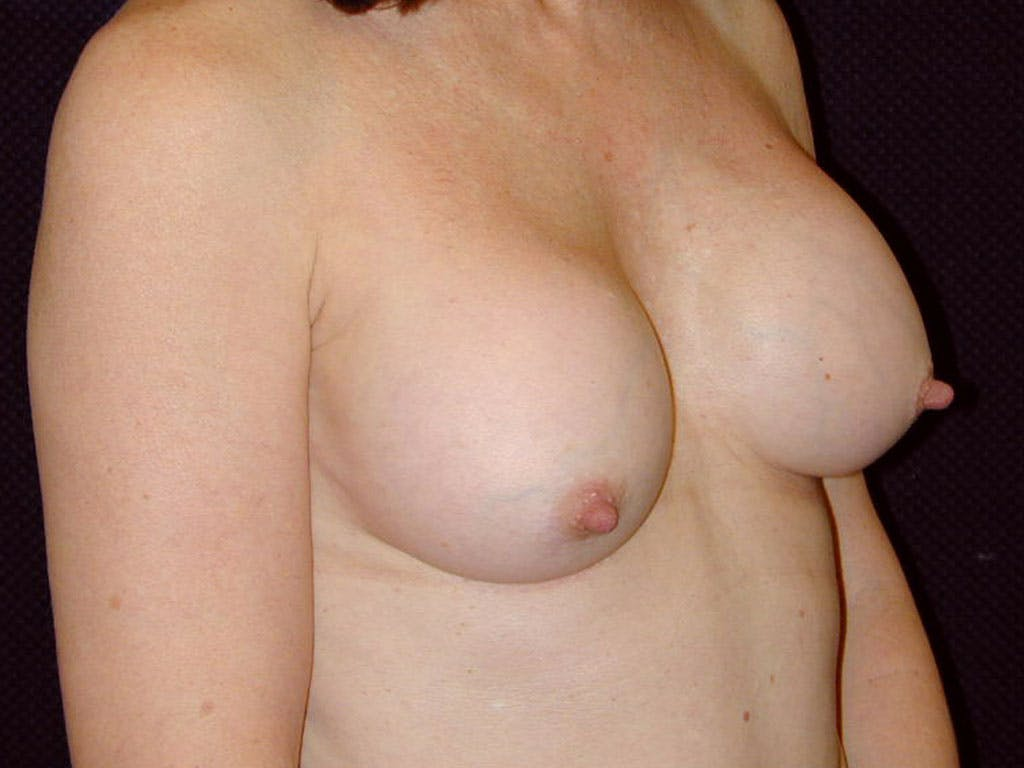 Revision Breast Surgery Gallery - Patient 39244141 - Image 3