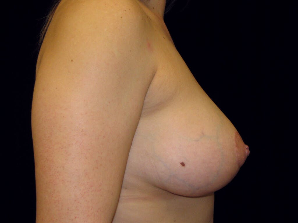 Vertical and Inverted T Breast Lift Gallery - Patient 39244137 - Image 6
