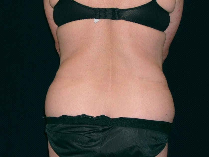 Tummy Tuck Gallery - Patient 39244134 - Image 9