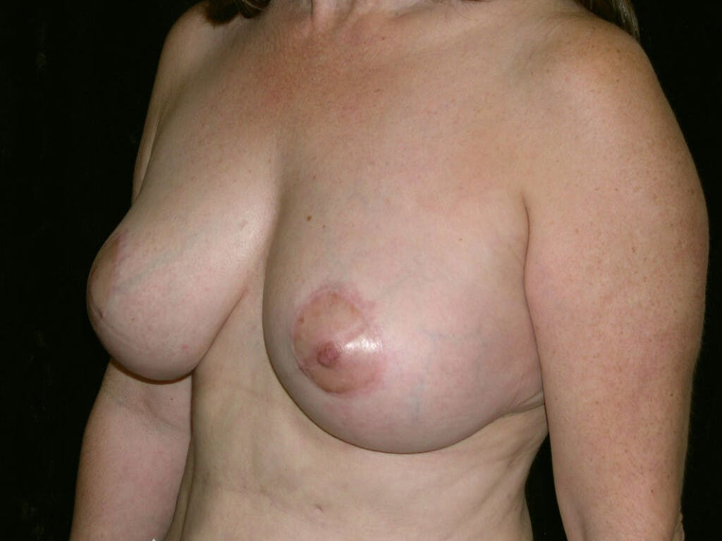 Breast Reduction T Incision Gallery - Patient 39244140 - Image 4