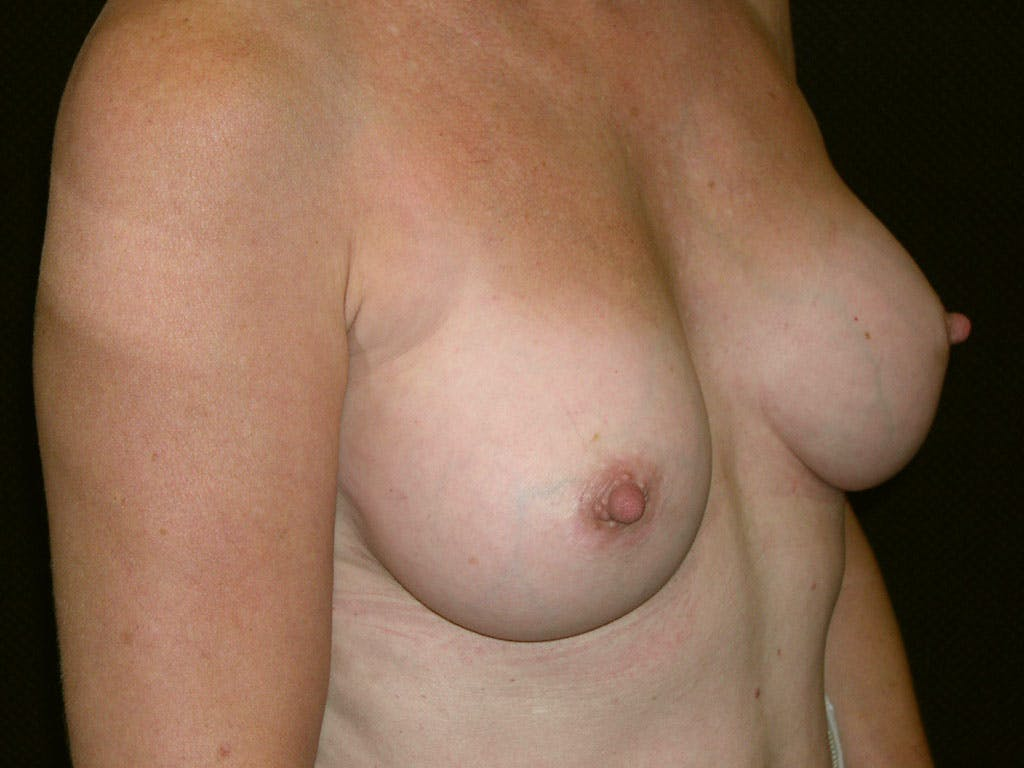 Revision Breast Surgery Gallery - Patient 39244141 - Image 4