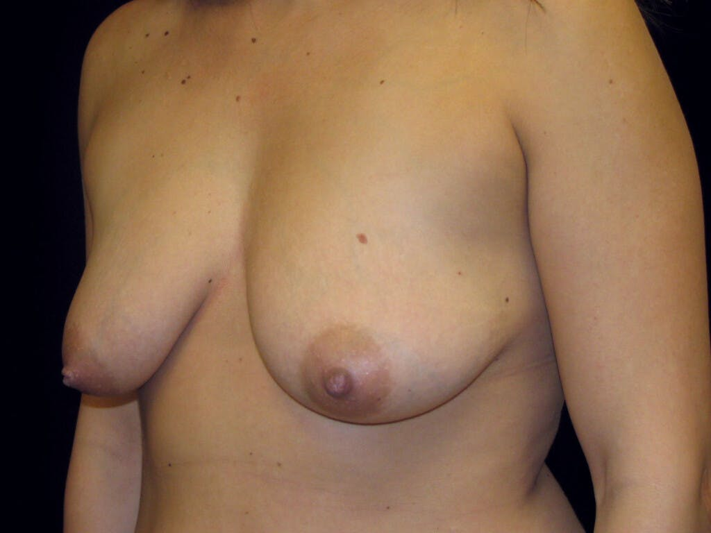 Vertical and Inverted T Breast Lift Gallery - Patient 39244137 - Image 7