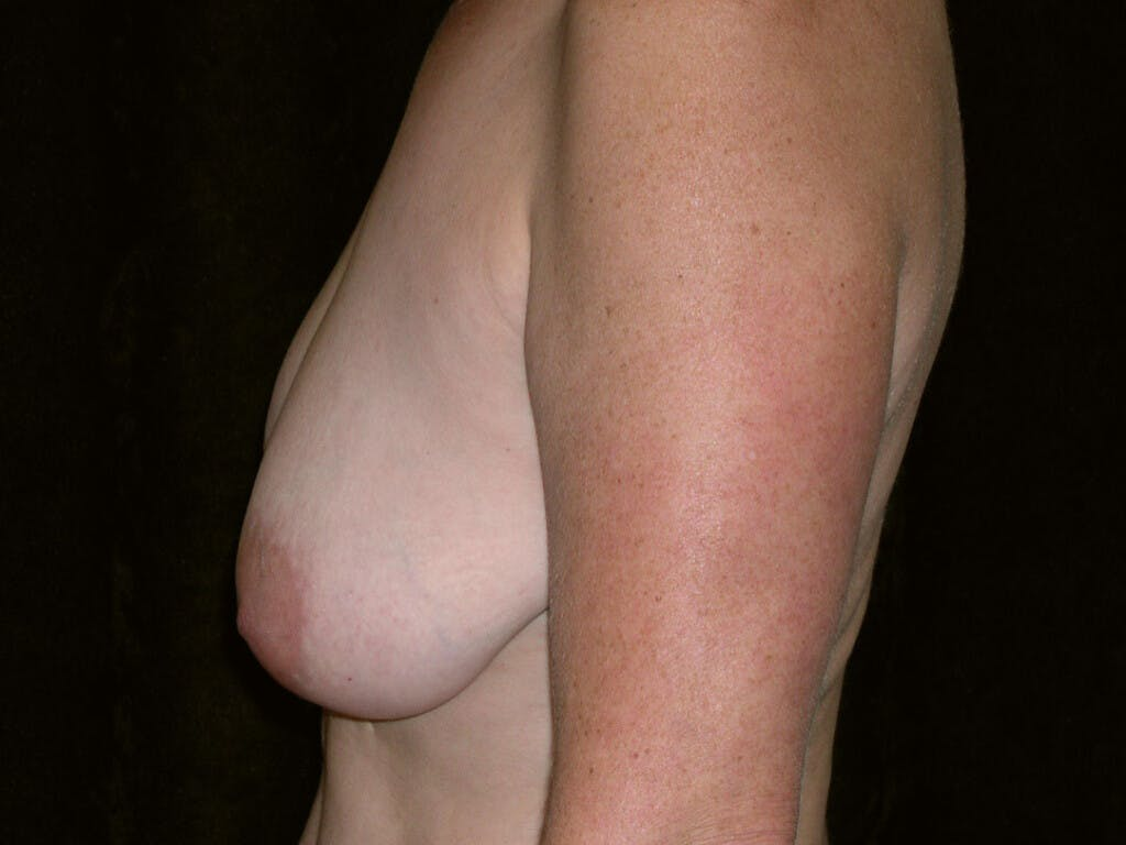 Breast Reduction T Incision Gallery - Patient 39244140 - Image 5
