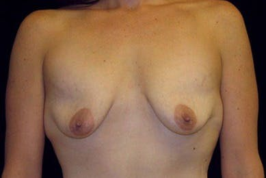 Breast Augmentation Gallery - Patient 39244136 - Image 1