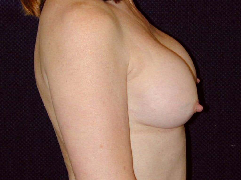 Revision Breast Surgery Gallery - Patient 39244141 - Image 5