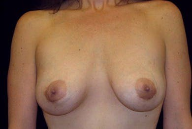 Breast Augmentation Gallery - Patient 39244136 - Image 2