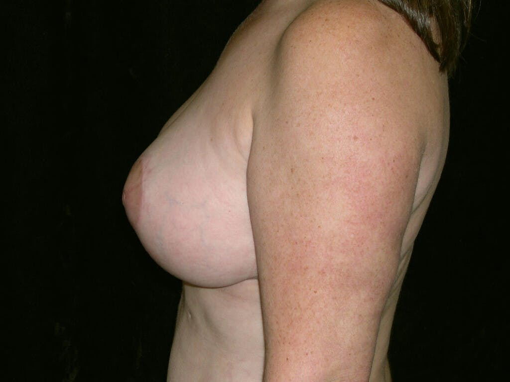 Breast Reduction T Incision Gallery - Patient 39244140 - Image 6