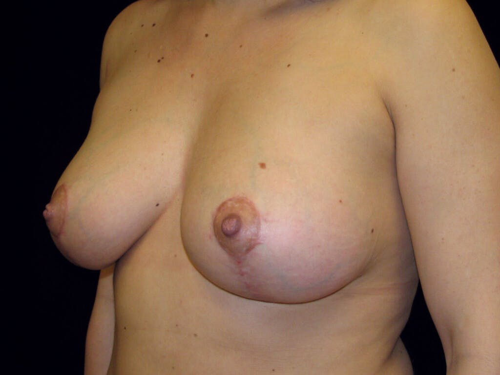 Vertical and Inverted T Breast Lift Gallery - Patient 39244137 - Image 8