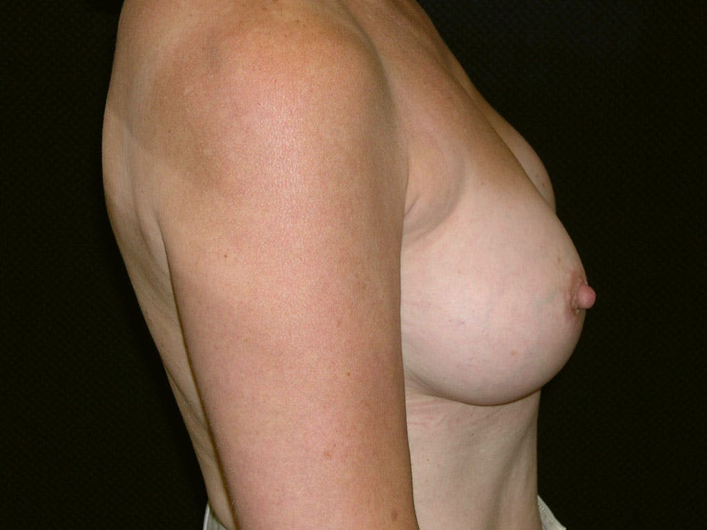 Revision Breast Surgery Gallery - Patient 39244141 - Image 6