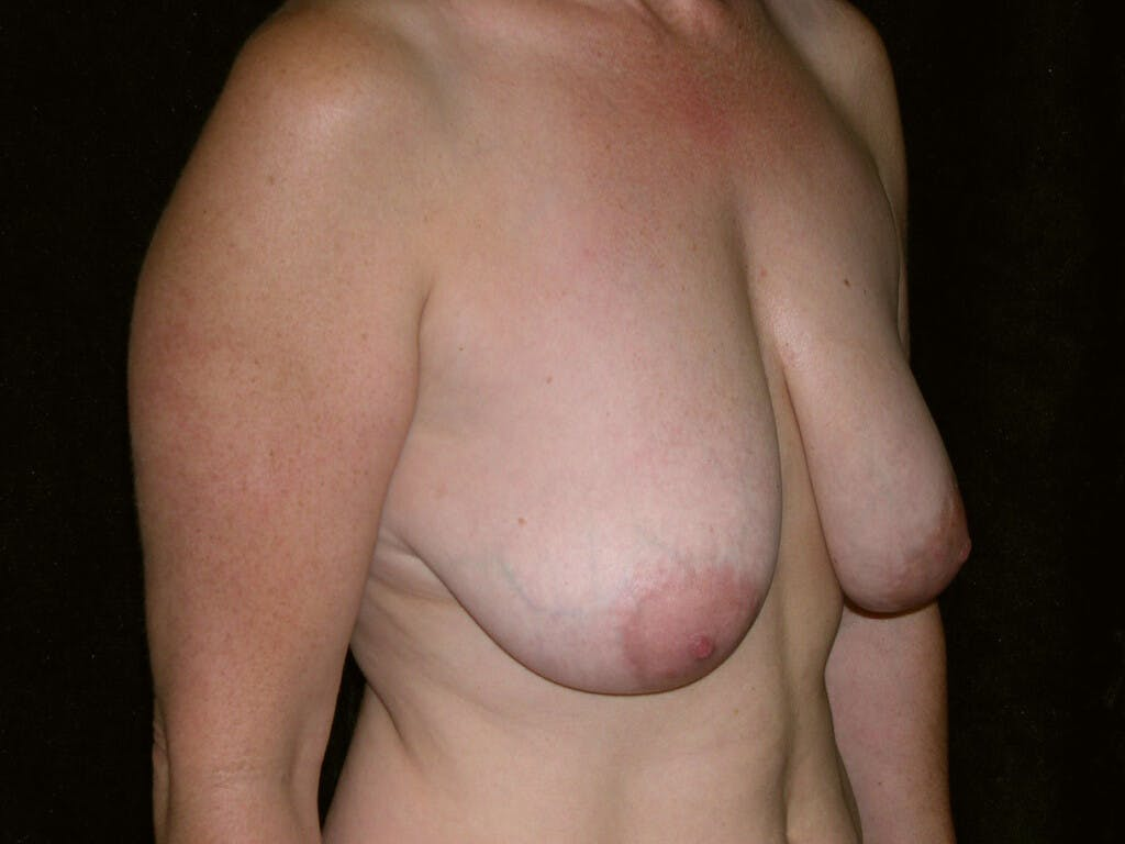 Breast Reduction T Incision Gallery - Patient 39244140 - Image 7