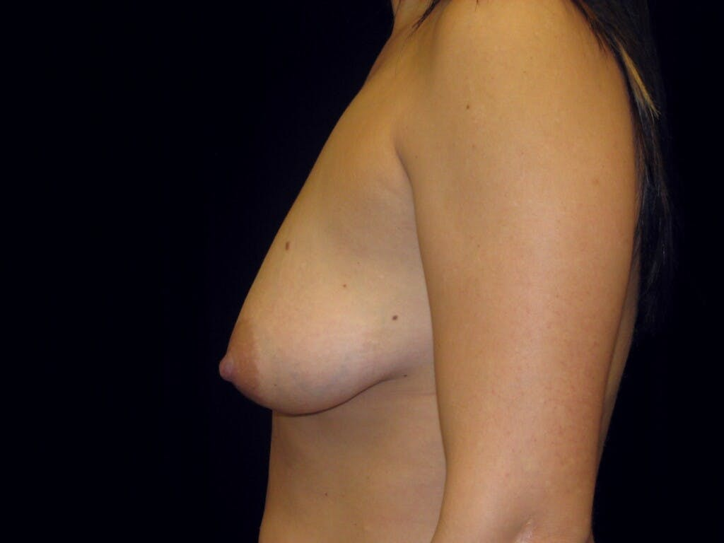 Vertical and Inverted T Breast Lift Gallery - Patient 39244137 - Image 9
