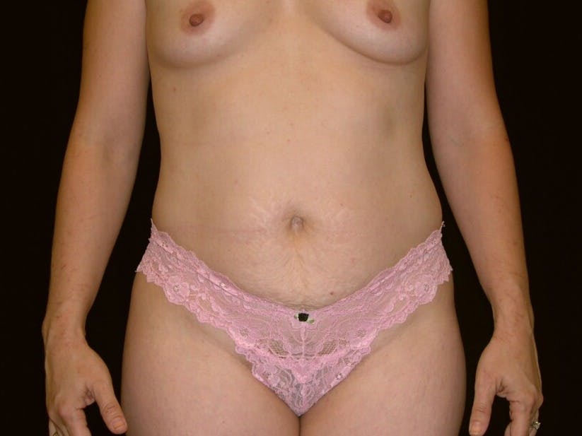 Tummy Tuck Gallery - Patient 39244145 - Image 1