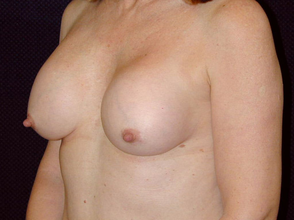 Revision Breast Surgery Gallery - Patient 39244141 - Image 7