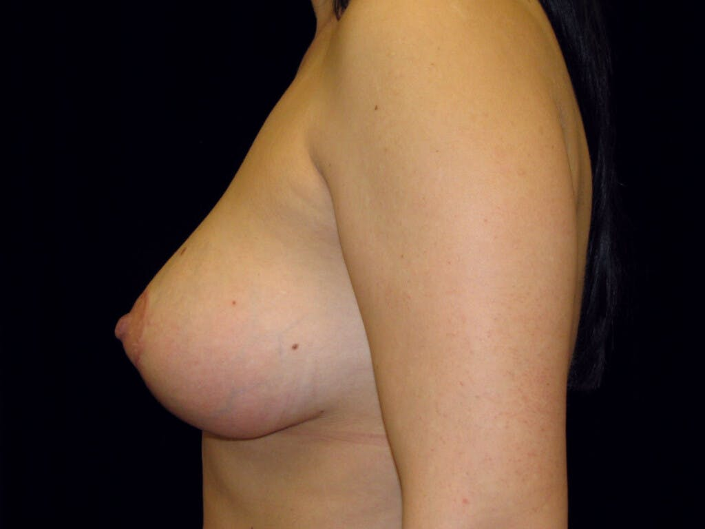 Vertical and Inverted T Breast Lift Gallery - Patient 39244137 - Image 10