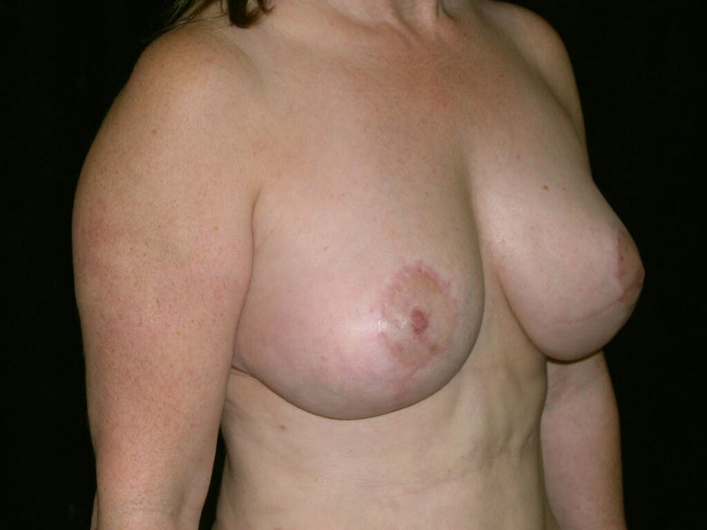 Breast Reduction T Incision Gallery - Patient 39244140 - Image 8