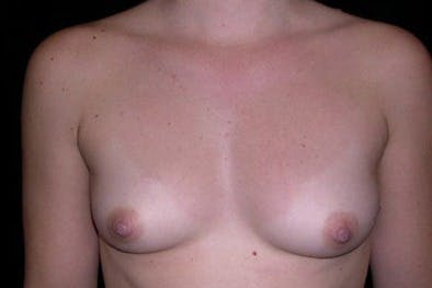 Breast Augmentation Gallery - Patient 39244139 - Image 1